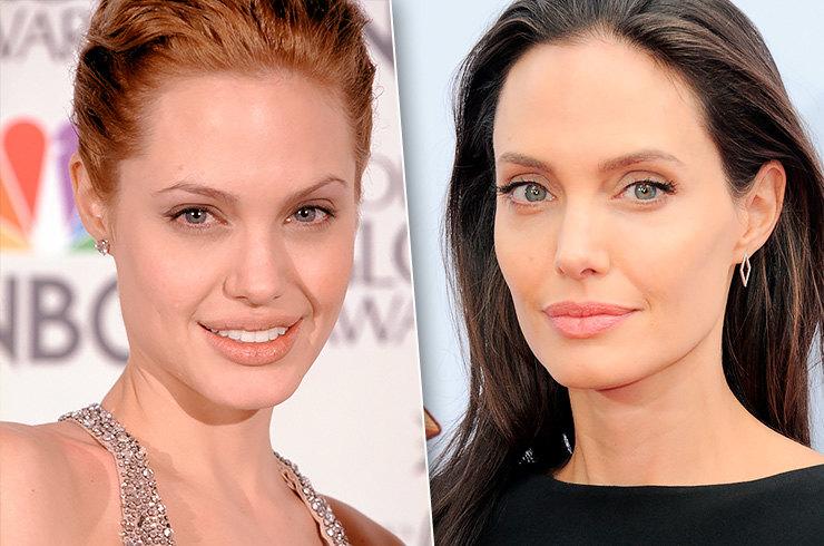 Удаление комков Биша у Анжелины Джоли - Platinum Laser
